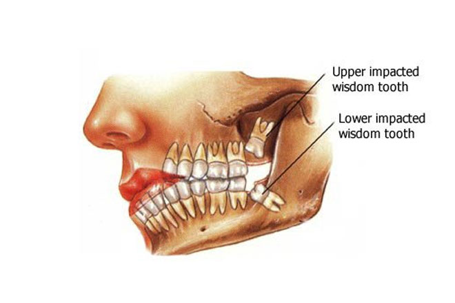 Wisdom-Tooth-Removal